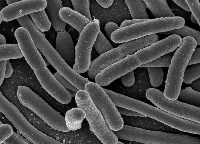 E. coli as viewed through a scanning electron microscope